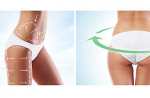 Aqualix en abdomen o cartucheras