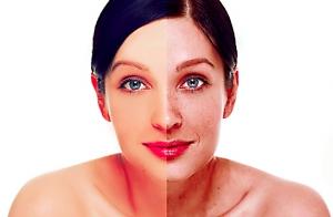 Elimina las manchas de tu cara