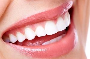 Blanqueamiento dental en solo 1 sesión